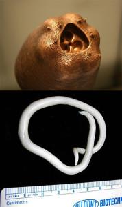 #9 Roundworm